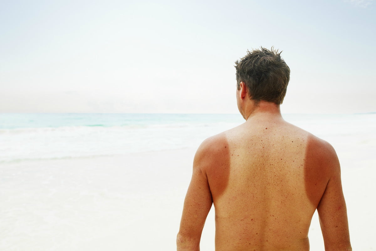 The Best Sunburn Relief Lotions and Gels